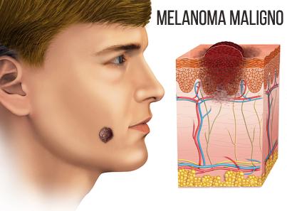 Melanoma maligno en la piel