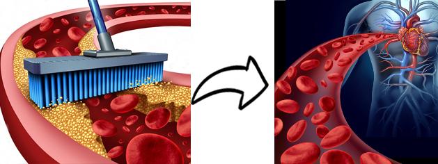 limpia tus arterias naturalmente
